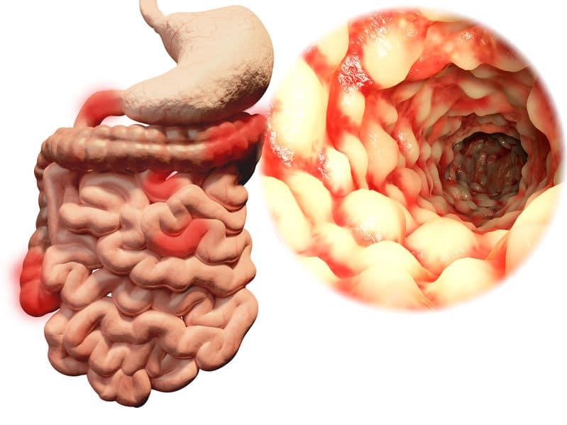 De ziekte van Crohn, hoe kun je ermee leven?